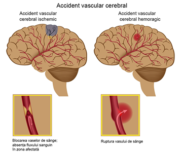 Accidentul vascular cerebral